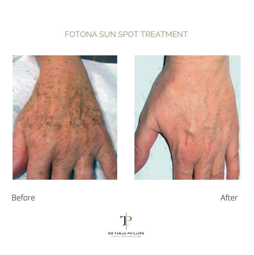Fotona Sun Spot Treatment